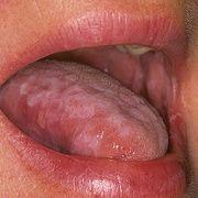 Красный плоский лишай в полости рта