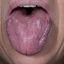 45. Красный плоский лишай в полости рта фото