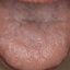 5. Красный плоский лишай в полости рта фото