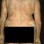 6. Отрубевидный лишай на теле фото