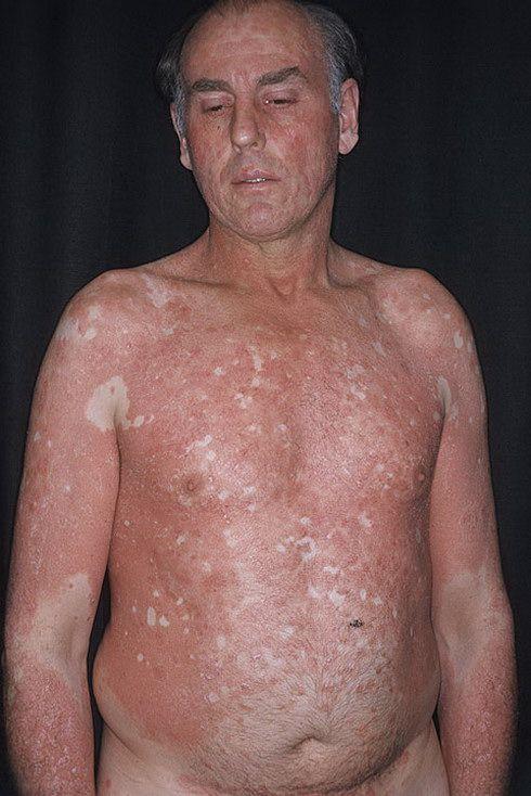 Болезнь тела картинки