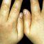 11. Кольцевидная гранулема у детей фото