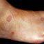 14. Кольцевидная гранулема у детей фото