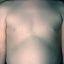 2. Кольцевидная гранулема у детей фото