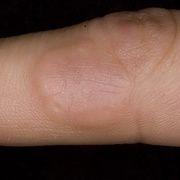 Кольцевидная гранулема
