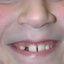 14. Фолликулярный кератоз у ребенка фото