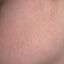 25. Фолликулярный кератоз у ребенка фото