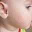 50. Фолликулярный кератоз у ребенка фото