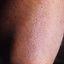 54. Фолликулярный кератоз у ребенка фото