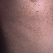 Пилярный кератоз
