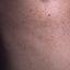 23. Пилярный кератоз фото