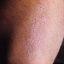 26. Пилярный кератоз фото