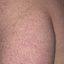 31. Пилярный кератоз фото