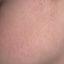 34. Пилярный кератоз фото