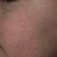 41. Пилярный кератоз фото