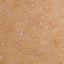 88. Пилярный кератоз фото