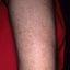 96. Пилярный кератоз фото
