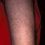 97. Пилярный кератоз фото