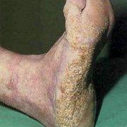 Кератоз стопы