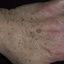 6. Кератоз рук фото