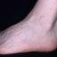 11. Кератоз на ногах фото