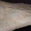 20. Кератоз на ногах фото