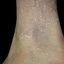 24. Кератоз на ногах фото