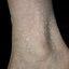 25. Кератоз на ногах фото