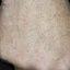 27. Кератоз на ногах фото