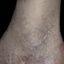3. Кератоз на ногах фото