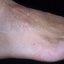 36. Кератоз на ногах фото