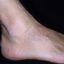 38. Кератоз на ногах фото