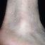 39. Кератоз на ногах фото