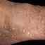 42. Кератоз на ногах фото