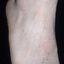 47. Кератоз на ногах фото