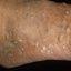 5. Кератоз на ногах фото