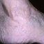 63. Кератоз на ногах фото