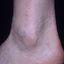 64. Кератоз на ногах фото