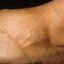 65. Кератоз на ногах фото