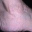 67. Кератоз на ногах фото