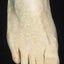 68. Кератоз на ногах фото
