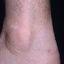 69. Кератоз на ногах фото