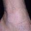 70. Кератоз на ногах фото