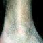 72. Кератоз на ногах фото