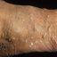 74. Кератоз на ногах фото