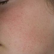 Кератоз кожи лица