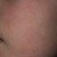 5. Кератоз кожи лица фото