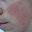 6. Кератоз кожи лица фото