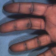 Кератодермия ладоней