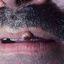 1. Кератоакантома губы фото